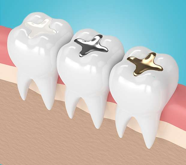 Houston Tooth Colored Fillings